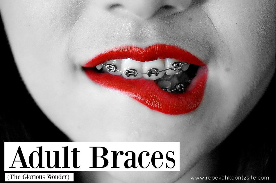 adult-braces